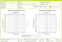 389C9 Audiogram Template | Wiring Resources in Blank Audiogram Template Download