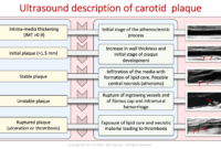 Carotid Course Info   Abc Vascular with regard to Carotid Ultrasound Report Template